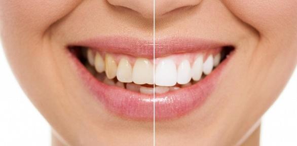 Комплексная гигиена полости рта, установка пломбы вклинике «Пять звезд»