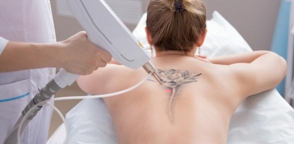 Удаление татуажа в«Кабинете наСоциалистической»