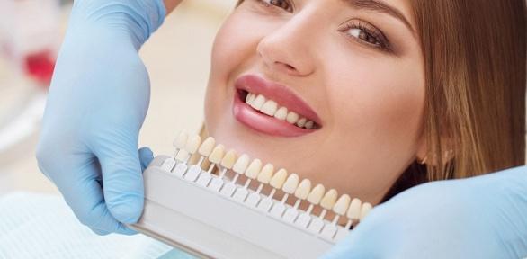 Чистка, отбеливание зубов вмедицинском салоне «Алеана»