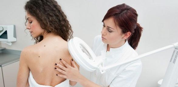Удаление папиллом в«Клинике доктора Элины Самойловской»