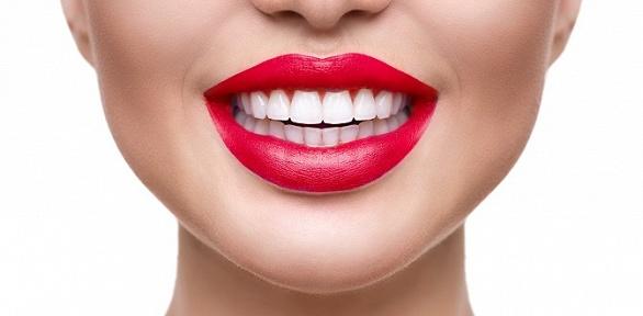 Профессиональная гигиена полости рта встоматологической клинике «Зубава»