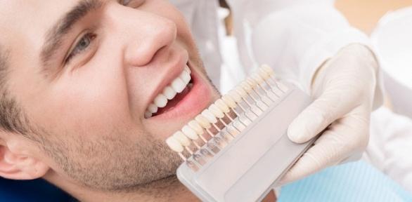Отбеливание зубов встудии красоты Volos_Volos