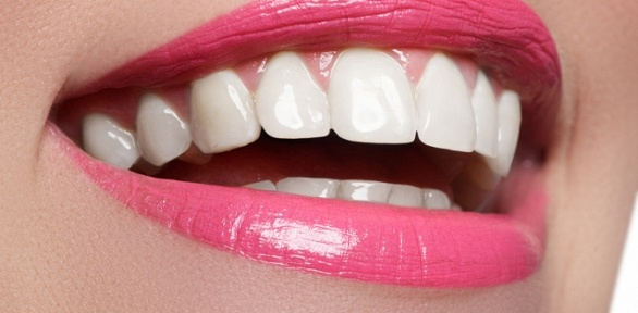 Отбеливание зубов, лечение кариеса вклинике Dental Med Studio