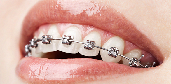Установка брекет-системы навыбор встоматологической клинике «Элика Дент»