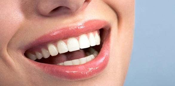 Ультразвуковая чистка иполировка всех зубов встоматологии «Лэна-дент»