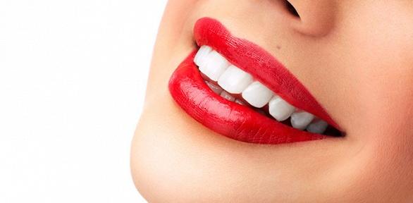 Экспресс-отбеливание зубов отстудии Magic White