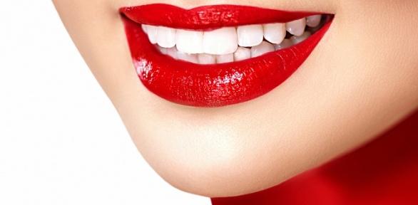 УЗ-чистка иполировка зубов встоматологии «Денталия»