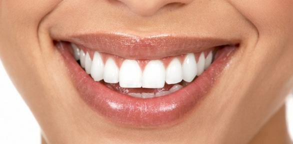 Процедура отбеливания зубов отстудии «Бомонд»