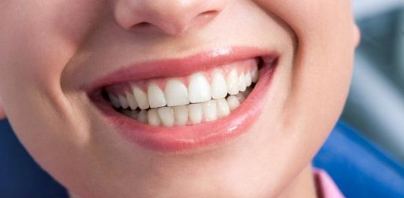 Чистка зубов, лечение кариеса отстоматологии Dental Center