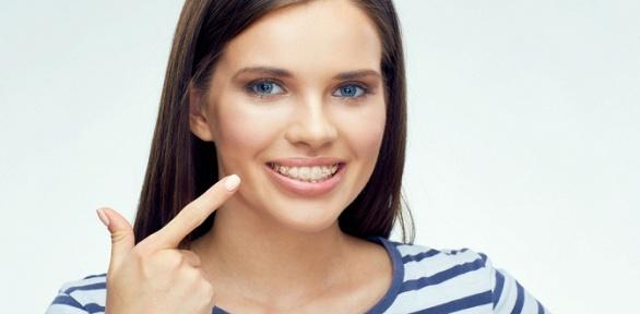 Установка брекет-системы отклиники Davinci Dental