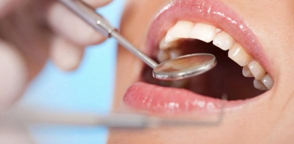 Гигиена полости рта или лечение кариеса вклинике «Альфа-Дент вИзмайлово»
