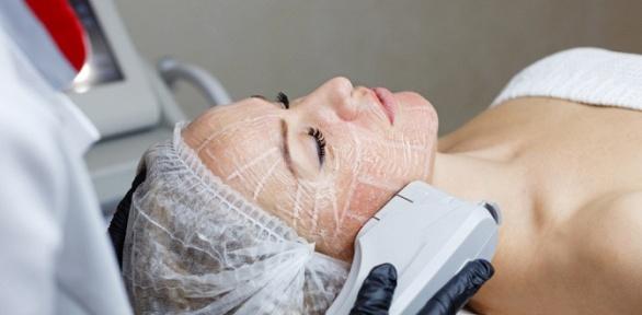 SMAS-лифтинг лица вцентре эстетической косметологии имедицины «Лотос»