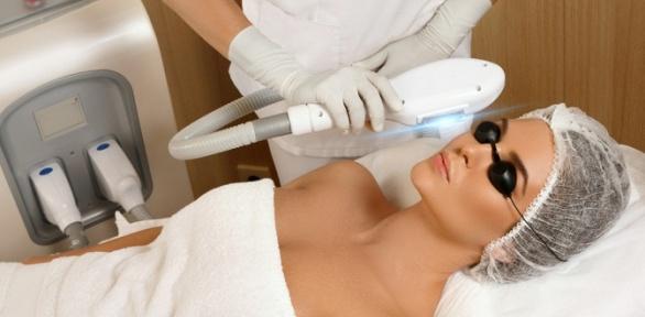 Фотоомоложение, удаление купероза встудии Beauty Laser