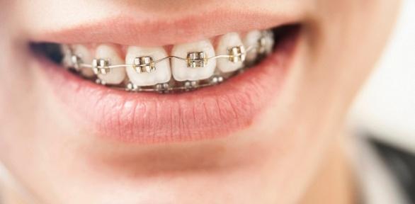 Установка брекет-системы встоматологии «Аврора Dent»