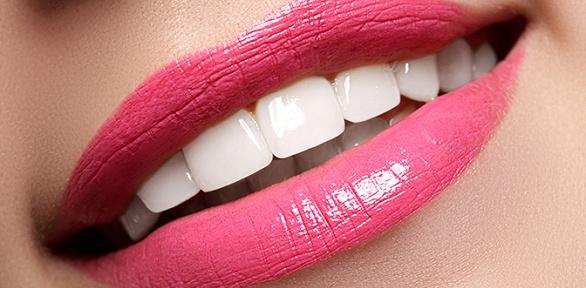 Процедура отбеливания зубов отстудии отбеливания зубов «Бомонд»