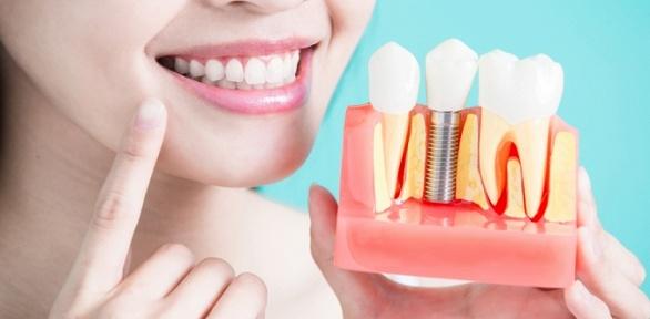 Установка зубного имплантата встоматологии Smile Secret