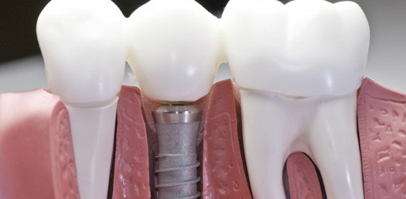Установка имплантата скоронкой отклиники «Просто стоматология»