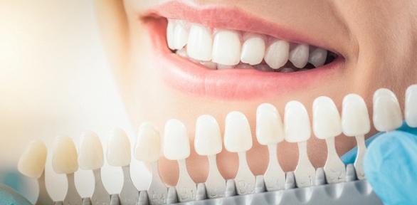 Отбеливание зубов встудии отбеливания зубов White Studio