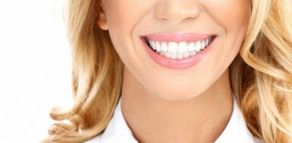 Отбеливание зубов навыбор встудии MyBrilliant Smile