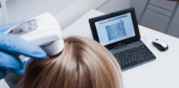 Прием врача-трихолога сдиагностикой итрихоскопией вмедцентре «Альянс»