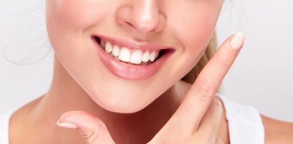 Отбеливание зубов встудии красоты Reforma Beauty