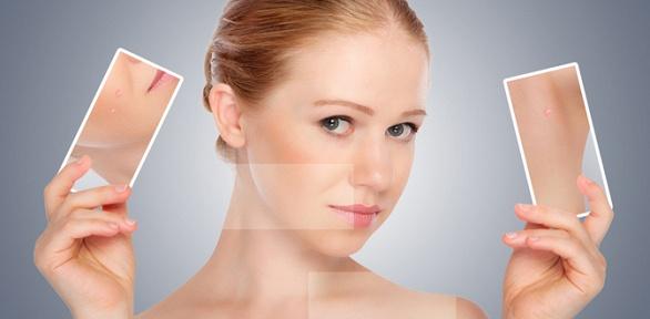 Удаление акне ипостакне, УЗ-чистка лица или пилинг всалоне LAQ Beauty