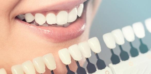 Косметическое отбеливание зубов встудии White Studio