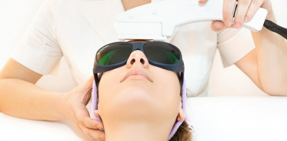 Лазерная эпиляция лица итела встудии красоты изагара «Марина»