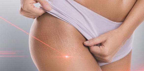 Процедуры коррекции фигуры вклинике Vitam