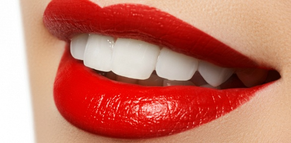 Отбеливание зубов встудии красоты «Модный стиль»