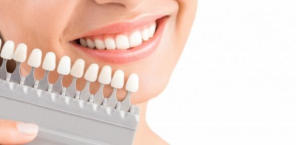 Косметическое отбеливание зубов встудии White & Smile