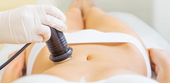 LPG-массаж, RF-лифтинг, кавитация встудии Beauty Bar