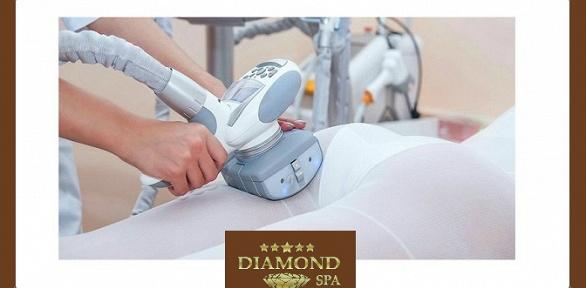Посещение сеансов LPG-массажа всалоне Diamond SPA