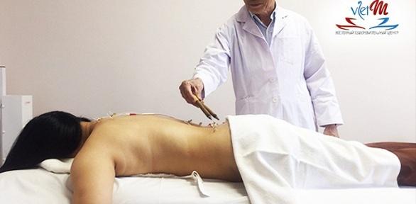 Комплексное вьетнамское лечение сиглорефлексотерапией всалоне «Вьет М»