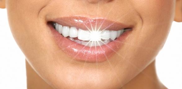 Гигиена полости рта, лечение кариеса вцентре «КИТ»