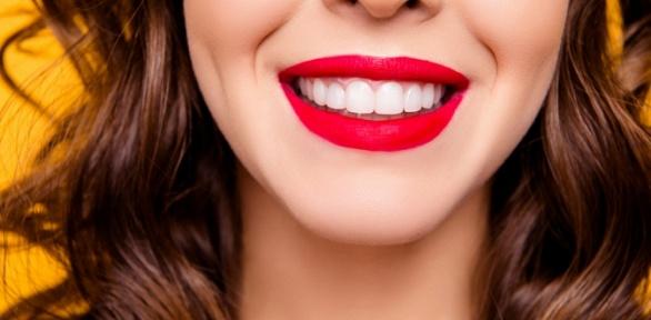 Лечение кариеса, отбеливание зубов вклинике Venta Dent