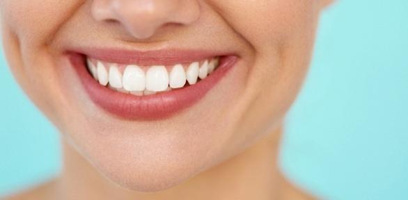 Чистка зубов всети клиник EuroStome