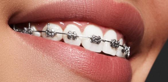 Установка брекет-системы наодну или две челюсти вклинике «СК-Клиник»
