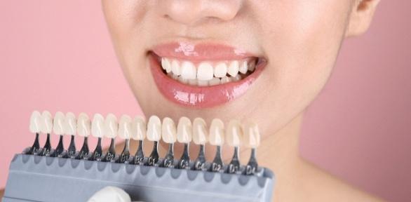 Отбеливание зубов до18тонов встудии Adelina Studio