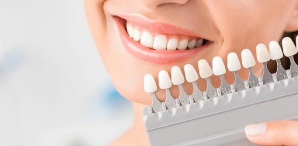 Профессиональная чистка зубов илечение кариеса вклинике «Дентал Приват»