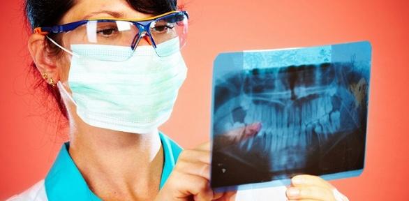 3D-томография челюстей, пазух носа вклинике «Аведент»