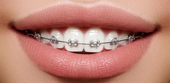 Установка брекетов встоматологической клинике Domini Dent