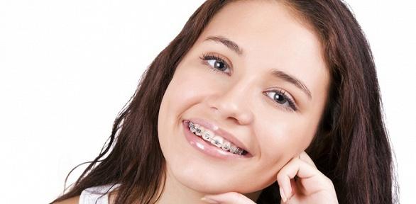 Установка брекет-системы надве челюсти встоматологии «Аврора Dent»