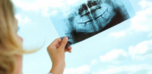 Компьютерная томография зубов ичелюсти вцентре «Мегаскан»