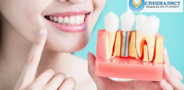 Установка имплантата под ключ всети стоматологий «Специалист»