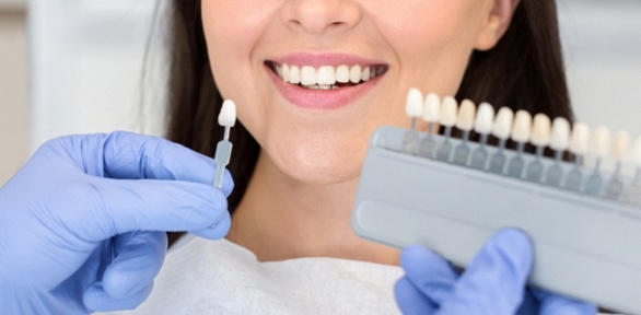 Отбеливание зубов отстудии «Арифметика тела»