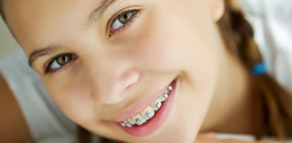 Установка брекет-системы встоматологической клинике MGClinic