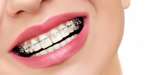 Установка брекетов встоматологической клинике «Добрый Доктор»