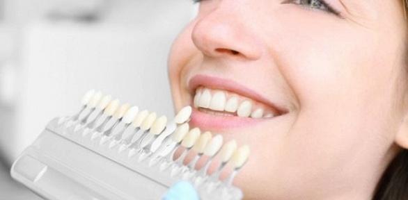 Отбеливание зубов вцентре Евы Гусевой