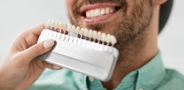 Косметическое отбеливание зубов всалоне Ultra White